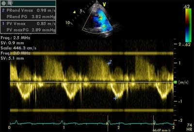 Fetal Echocardiography چییە؟